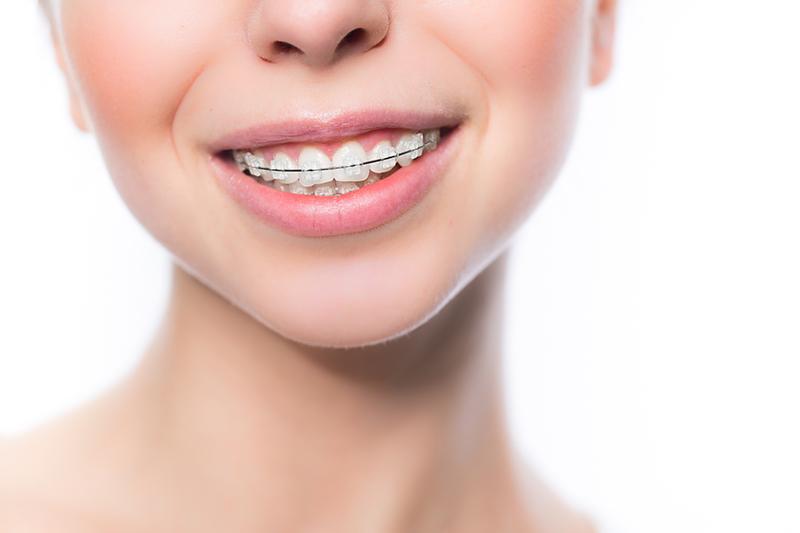 矯正歯科 歯並び