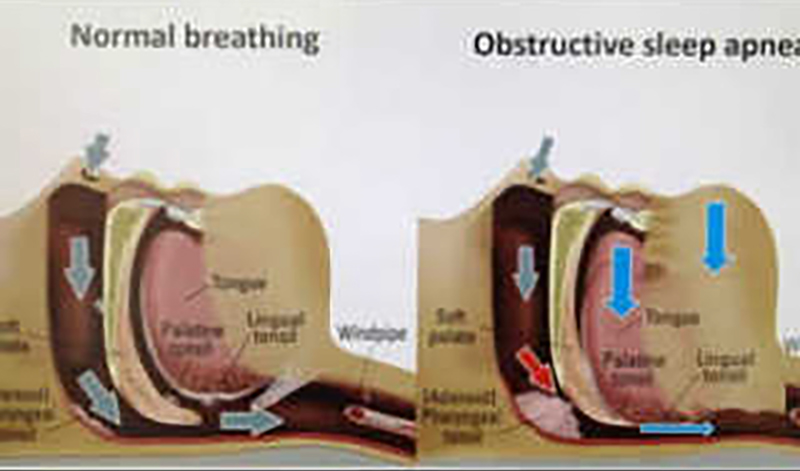 睡眠時無呼吸症候群 比較図
